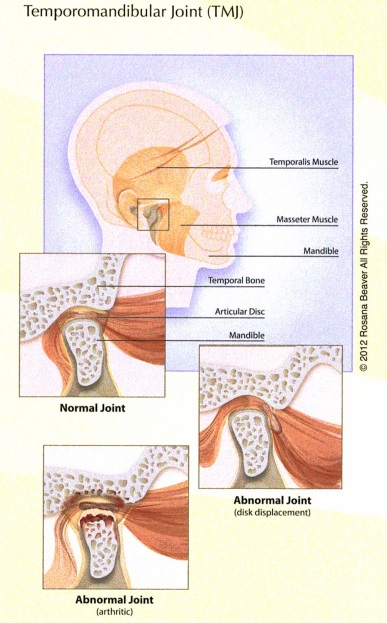 what-are-temporomandibular-joints_0.jpg